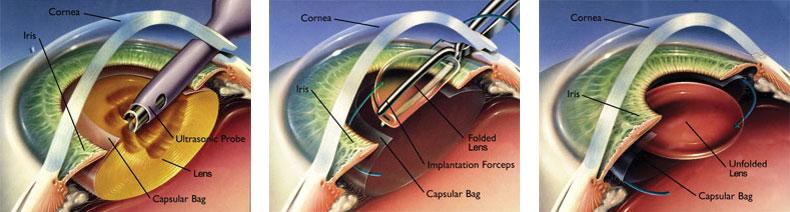 cataract surgery procedure steps pdf